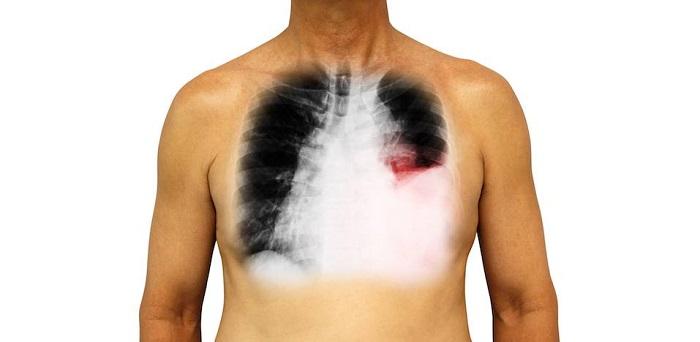 suy giảm hệ hô hấp