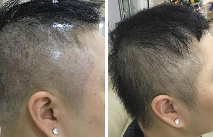 Hiệu quả sử dụng công nghệ cấy tóc bằng tế bào gốc