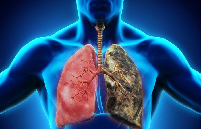 phổi người hút thuốc