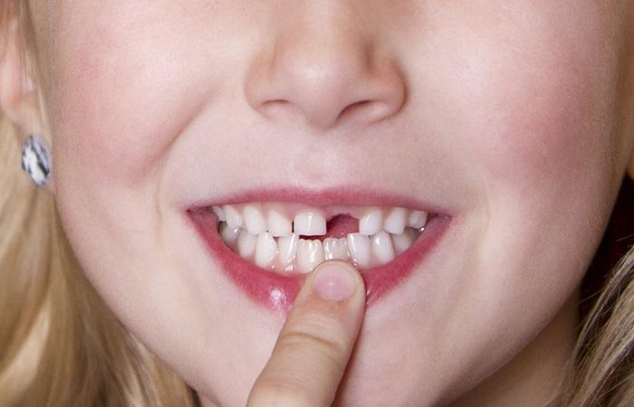tế bào gốc răng sữa