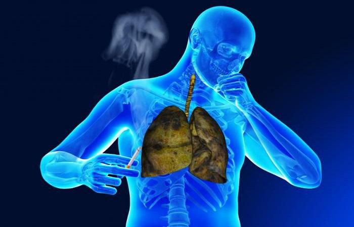 thanh lọc phổi, ung thư phổi