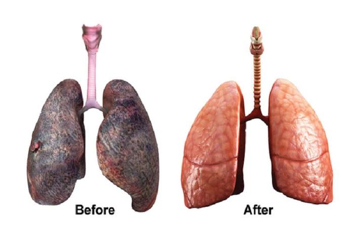 Happy Lung, gói dịch vụ thanh lọc thải độc phổi tại Bệnh viện quốc tế DNA
