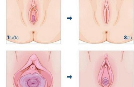 Hiệu quả se khít âm đạo bằng tế bào gốc