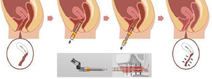 công nghệ laser trị khô rát vùng kín