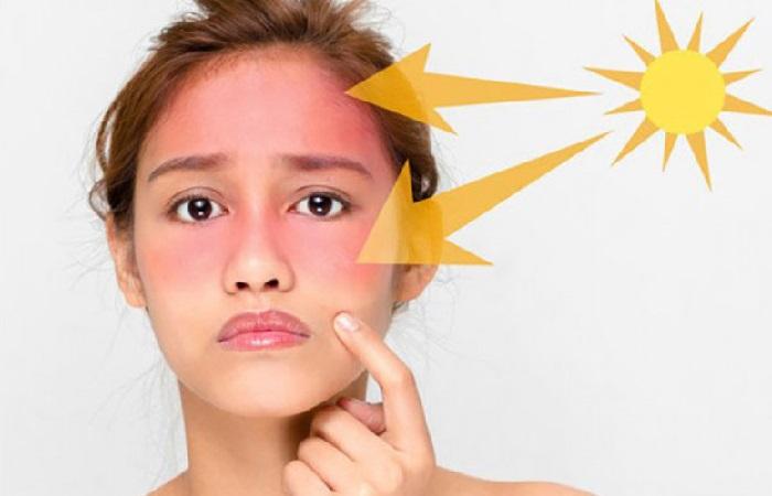 ánh nắng mặt trời gây hại cho làn da