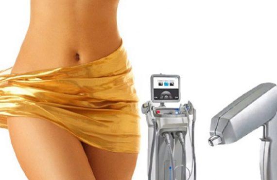 công nghệ tia laser cho vùng kín