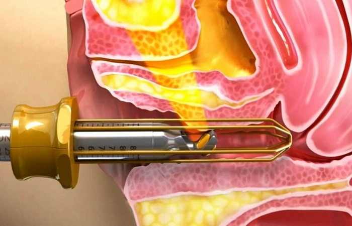 Sử dụng tia laser trong trị thâm vùng kín