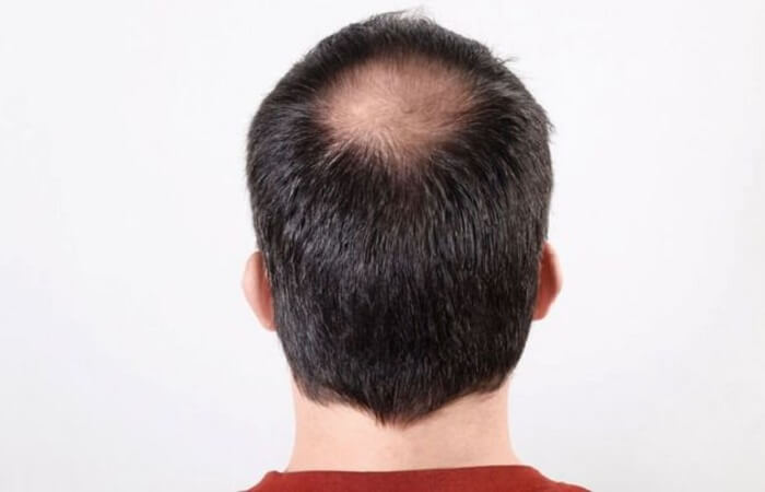 hói đầu khiến vẻ ngoài kém sắc hơn