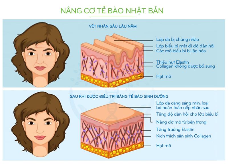 NANG CO TE BAO NHAT BAN AKITA