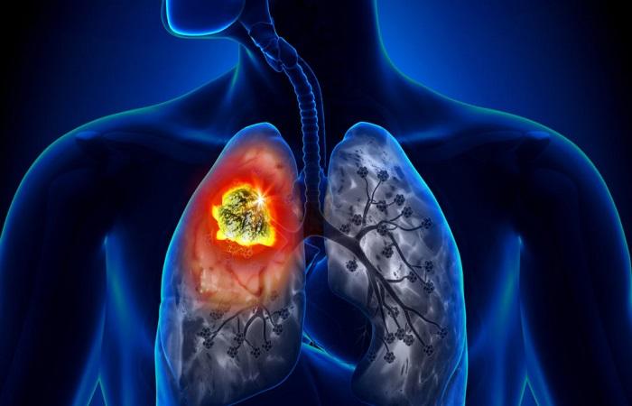 tác hại của hút thuốc lá, ung thư phổi