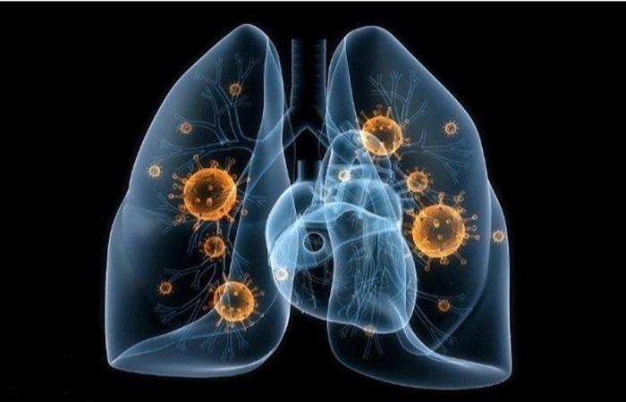 bệnh lao phổi, tác hại của lao phổi