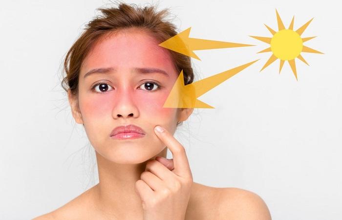 tác hại của ánh nắng mặt trời