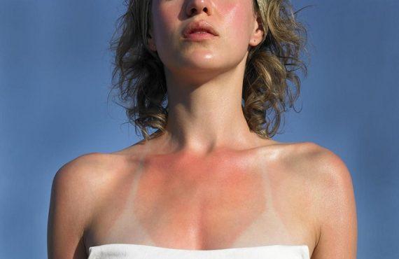 tác hại của tia cực tím làm da đen
