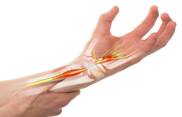 Hội chứng ống cổ tay do tình trạng suy yếu cơ