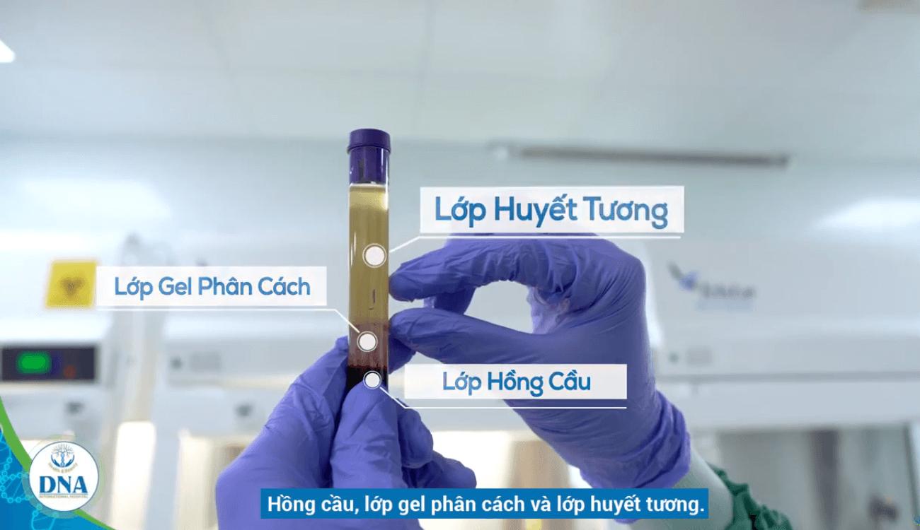 tế bào gốc tại bệnh viện quốc tế dna